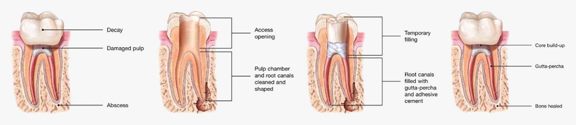 Aniamtion of endodontic retreatment process