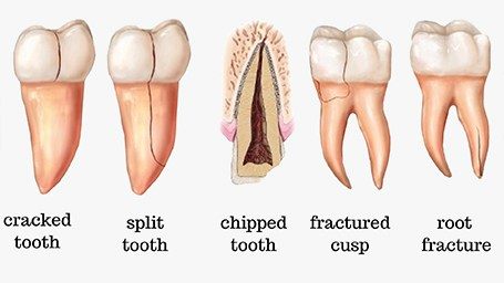 Animation of cracked tooth repair