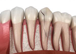 Illustration of cracked tooth in Saratoga between healthy teeth